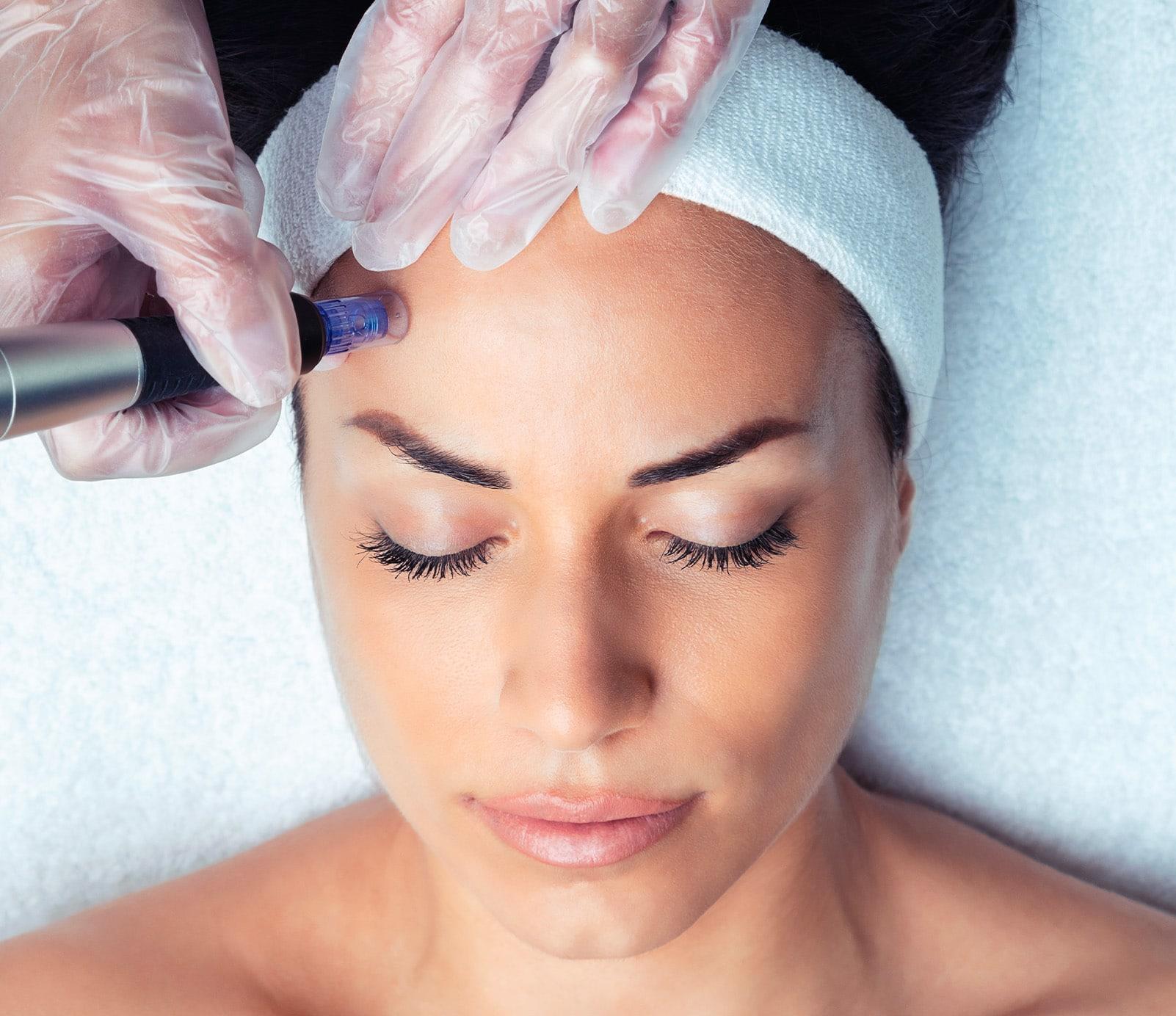 Microneedling : Nettoyage dermatologique   découvrez le prix de cette technique à Paris   BCBG